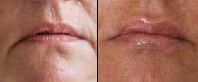 Restylane - close-up