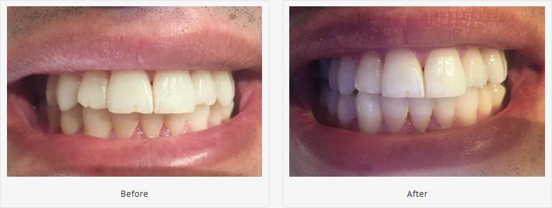 best-teeth-whitening-uk-tracey-bell-isleofman-dentistry