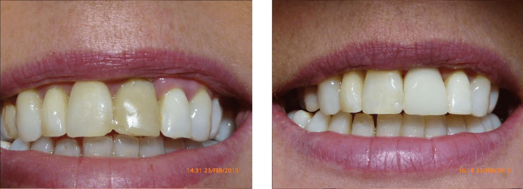 digital-dentistry-douglas-ramsey-castletown-traceybell