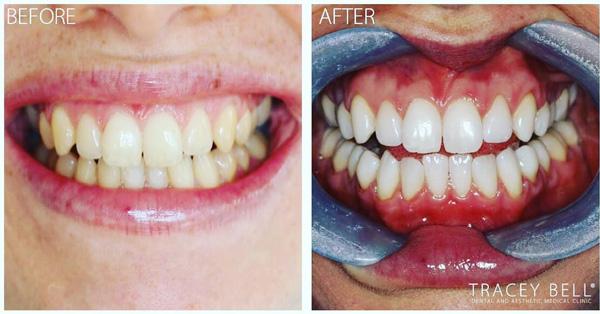 enlighten-tracey-bell-teeth-whitening-best-liverpool