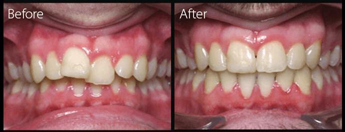 invisalign-sileofman-braces