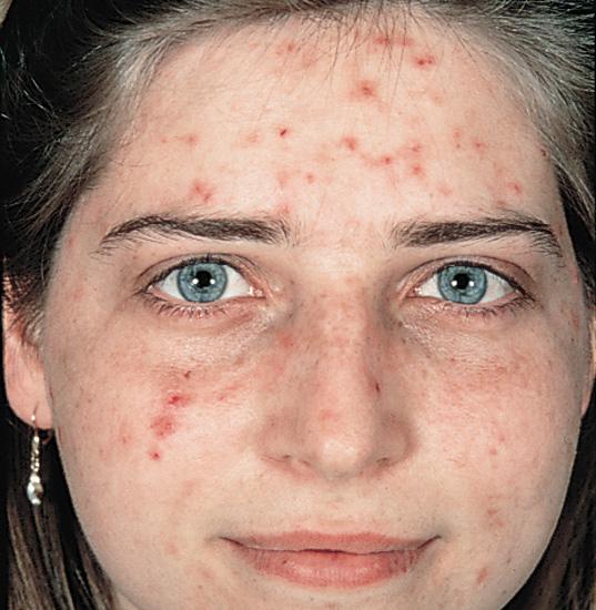 acne-vulgarisacne-vulgaris-traceybell