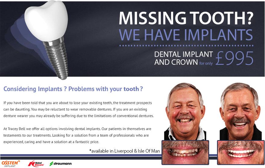 landingpages_implants