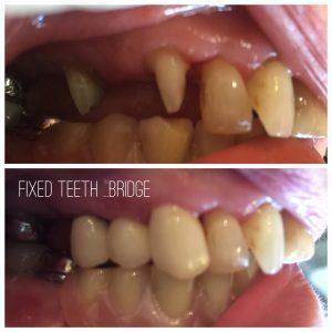 dental implants isle of man