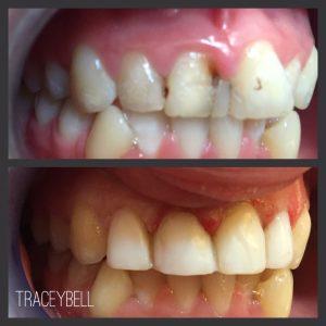 dental implants liverpool